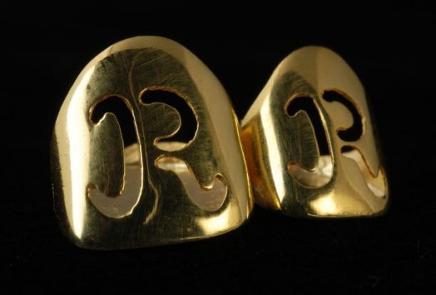 Gouden stifttanden met de ingegraveerde letter R.
