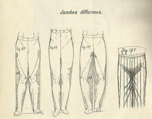 Afbeelding uit 'Corrections et retouches'.