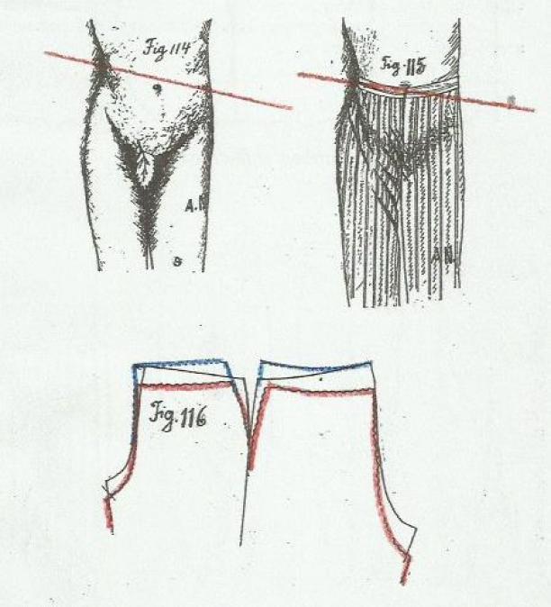 Afb. 8 Scheefstand in pantalon. Bron: Roy Verschuren.